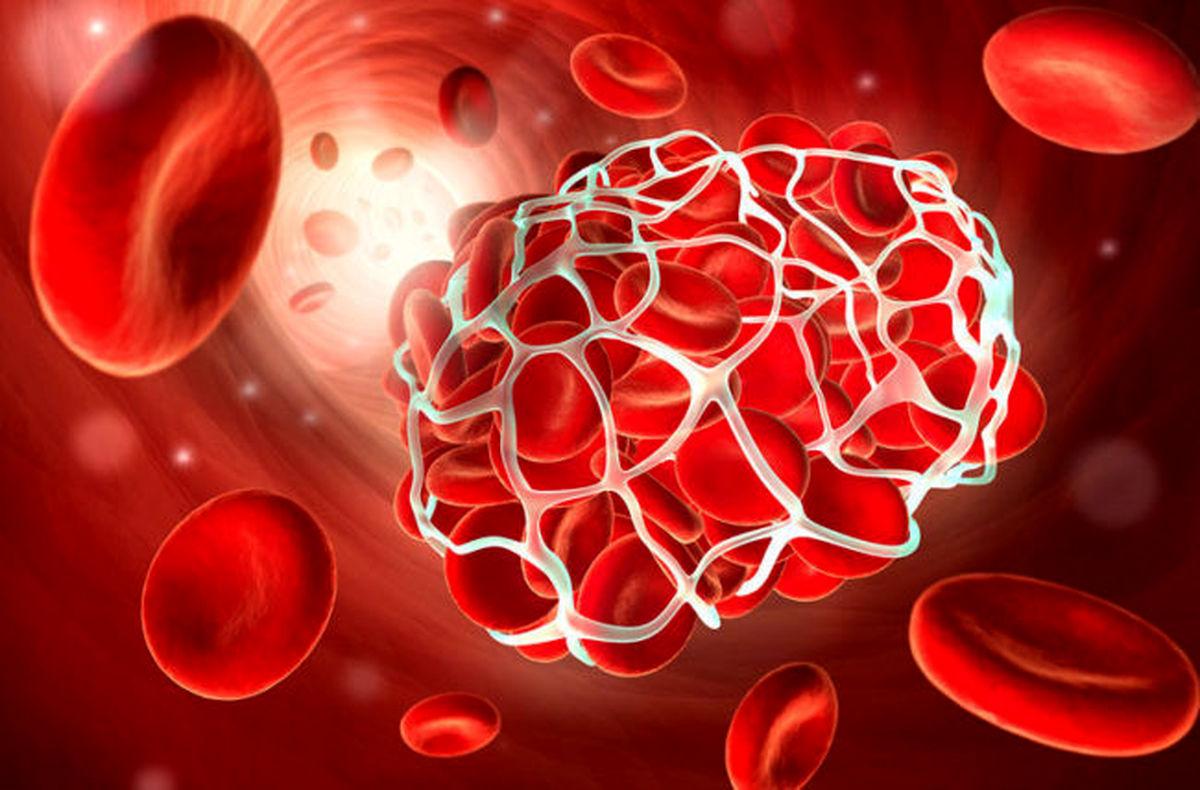 کرونا احتمال لختگی خون بعد از جراحی را ۹۰ درصد افزایش می دهد